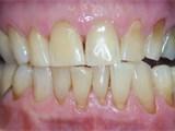 Bleaching Procedure After