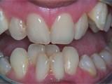 Pre-Othrodontic